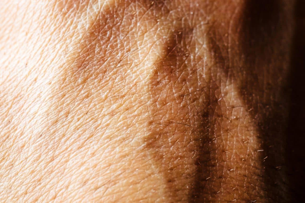 Skin Cancer Foothills Ent